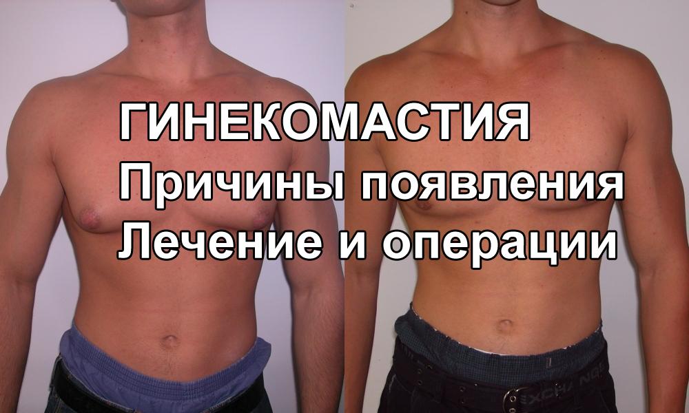 Гинекомастия - причины появления, лечение и операции по удалению, МКБ-10, фото