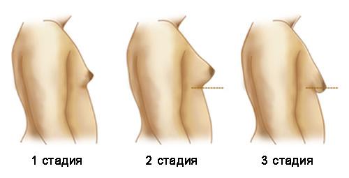 Стадии гинекомастии