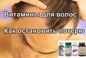 Выпадение волос: какие витамины нужны, лучшие витамины против облысения