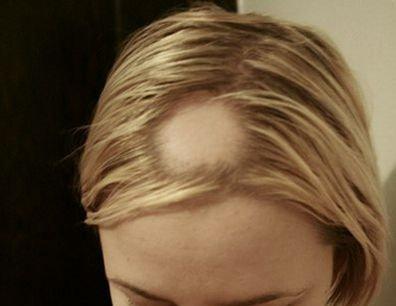 Очаговая потеря волос