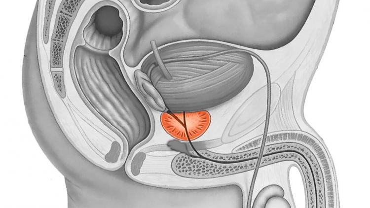 Аденома простаты - лечение, симптомы, операции