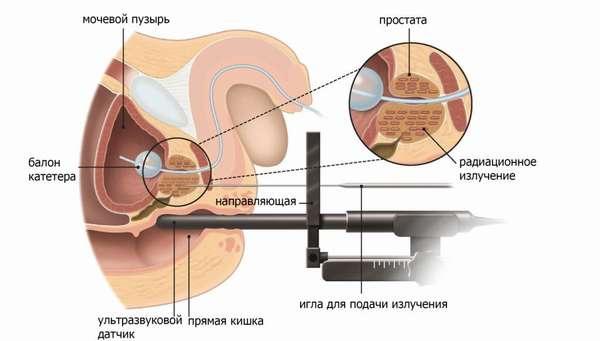 Лечение рака простаты брахитерапией