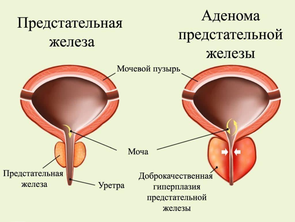 Дгпж хронического простатита быстро кончаю из за простатита