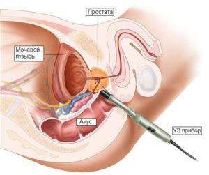 Лечение рака простаты ультразвуком