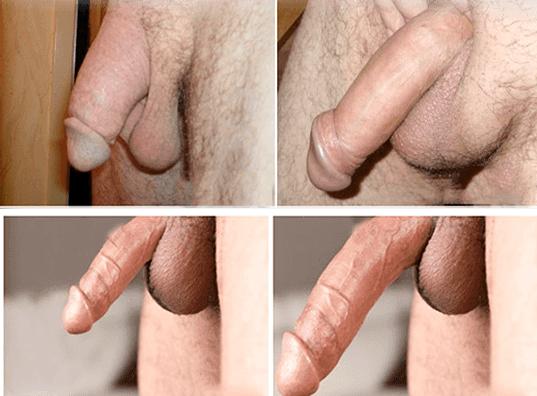 Джелкинг до и после фото