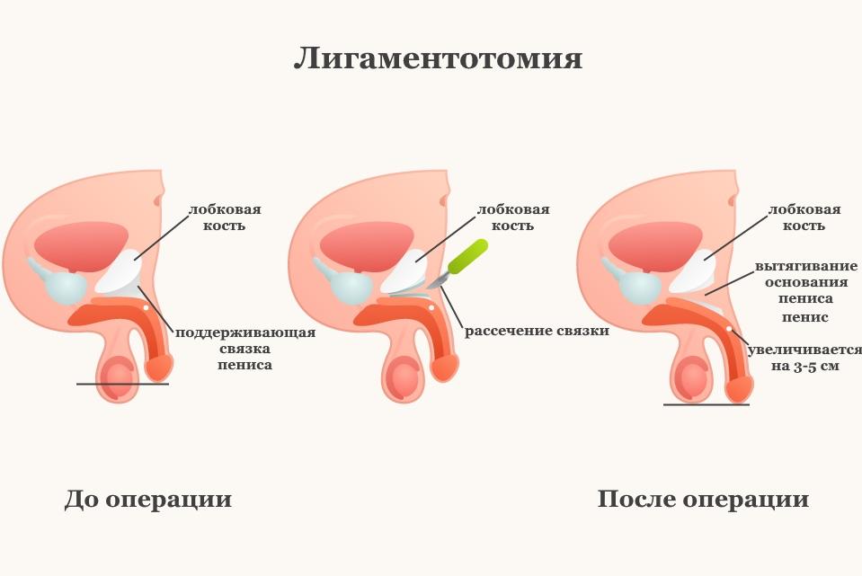 Лигаментотомия - операция по увеличению члена